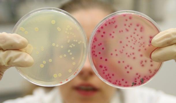 Laborante laat twee petrischaaltjes zien met verschillende bacteriekweken